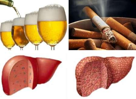 Người hút thuốc lá tăng nguy cơ gây ung thư gan.