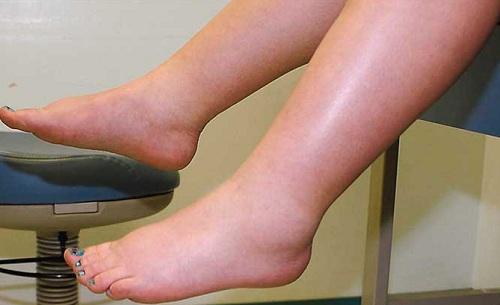 Men gan cao có thể phát hiện do phù phần dưới cơ thểMen gan cao có thể phát hiện do phù phần dưới cơ thể