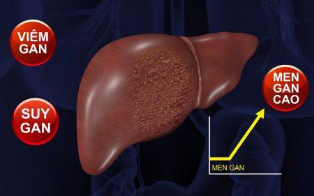 Điểm mặt 4 triệu chứng tự bắt bệnh men gan cao để điều trị sớm