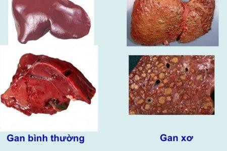 Dấu hiệu gan bị tổn thương – phòng tránh và phát hiện xơ gan trước khi quá muộn