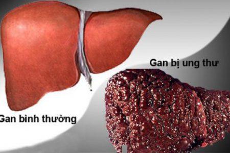 Những ai có khả năng mắc ung thư gan?