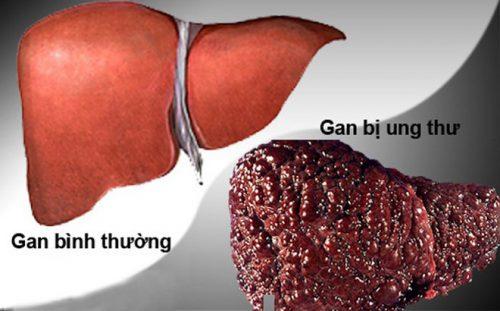 Ung thư gan là một trong những nguyên nhân gây tử vong hàng đầu