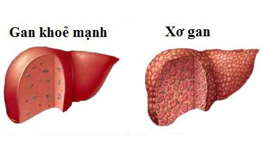 Viêm gan phát triển thành xơ gan