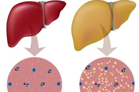 Gan nhiễm mỡ ăn gì giúp giảm thiểu và phòng tránh bệnh?