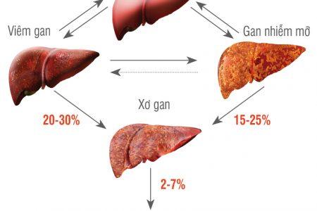 Bệnh gan nhiễm mỡ độ 3 và triệu chứng, phương pháp điều trị hiệu quả