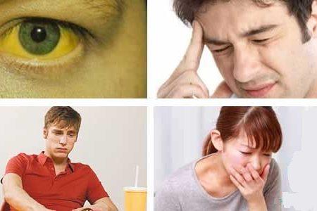 Nhận biết những triệu chứng của viêm gan C để điều trị kịp thời