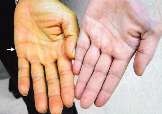 Vàng da cảnh báo nguy cơ người bệnh có thể bị viêm gan C