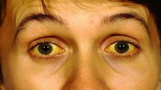 Bệnh nhân bị viêm gan C có thể bị vàng da và mắt