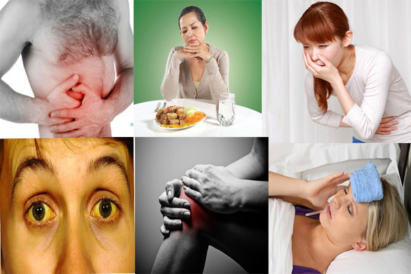 Các biểu hiện của bệnh viêm gan A