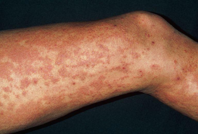 Xuất huyết dưới da là triệu chứng nguy hiểm của bệnh viêm gan B