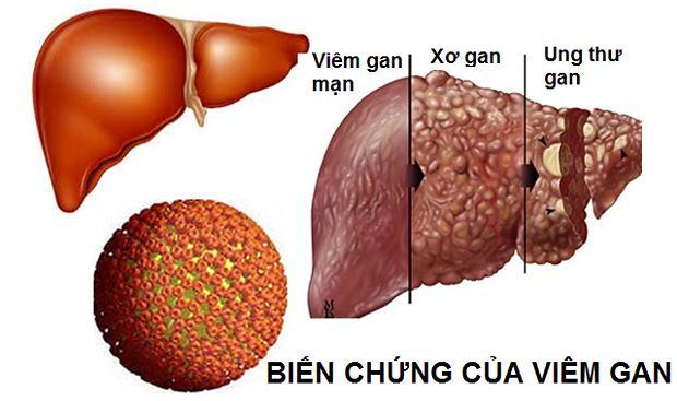 Biến chứng nguy hiểm của viêm gan siêu vi B