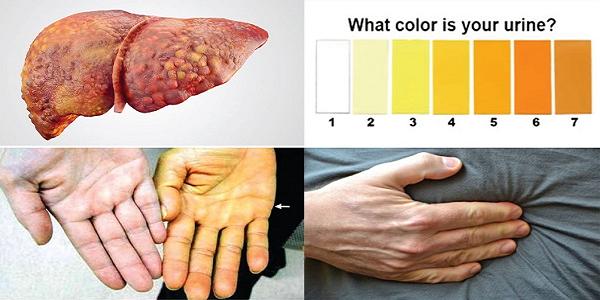 Biểu hiện vàng da, tắc mật của người men gan cao