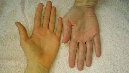 Vàng da là dấu hiệu men gan cao dễ nhận biết