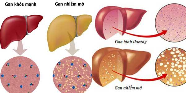 Phân biệt gan nhiễm mỡ và gan bình thường