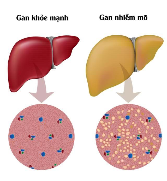 Gan nhiễm mỡ cần được kiểm soát ngay từ đầu để tránh những biến chứng nguy hiểm