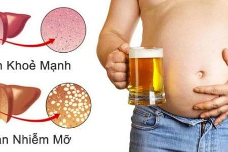 Người bệnh gan nhiễm mỡ uống gì tốt cho sức khỏe?