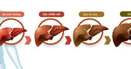 Bệnh men gan cao có nguy hiểm không và biện pháp kiểm soát và điều trị?