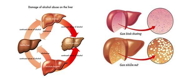 Các giai đoạn phát triển của bệnh gan nhiễm mỡ
