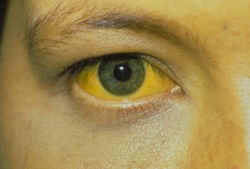 Vàng da, vàng mắt xuất hiện nhiều ở giai đoạn mãn tính