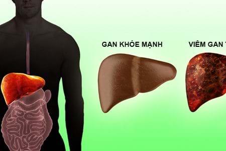 Bệnh viêm gan tự miễn, nguyên nhân, triệu chứng và điều trị