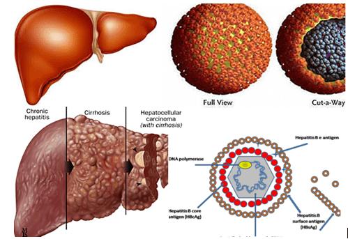 Cách điều trị viêm gan B mạn tính thể hoạt động