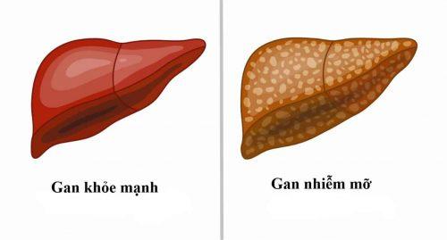 Bệnh gan nhiễm mỡ có thể được chia làm ba loại