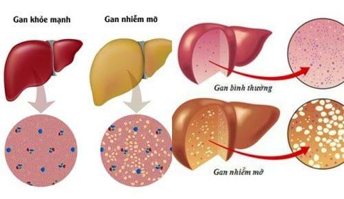 Gan nhiễm mỡ ăn gì, chế độ dinh dưỡng có ảnh hưởng như thế nào đến việc điều trị gan nhiễm mỡ