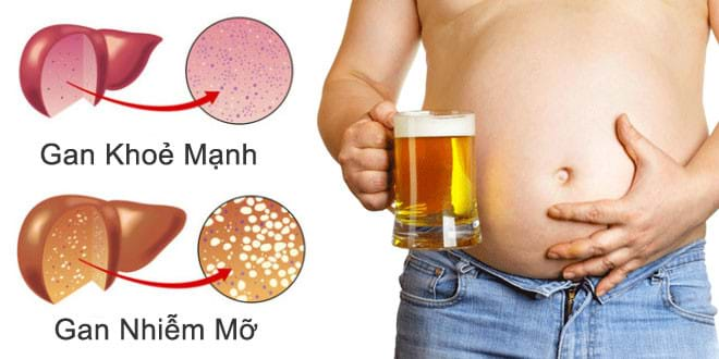 Rượu, bia là nguyên nhân chính khiến bệnh gan nhiễm mỡ độ 3 trở nên trầm trọng