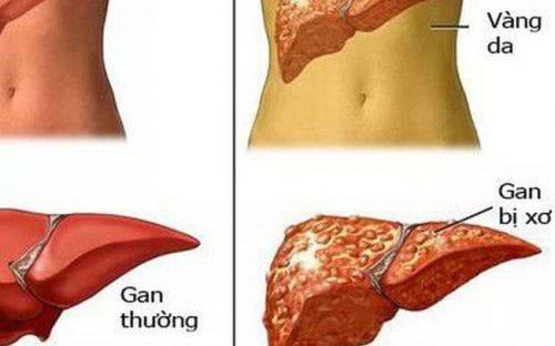 Dấu hiệu cho thấy gan đang bị tổn thương cần phục hồi gan ngay