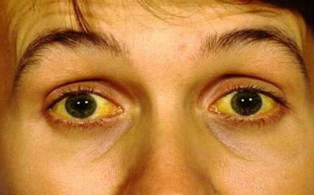 Các triệu chứng thường gặp của viêm gan A, B, C mà bạn cần biết