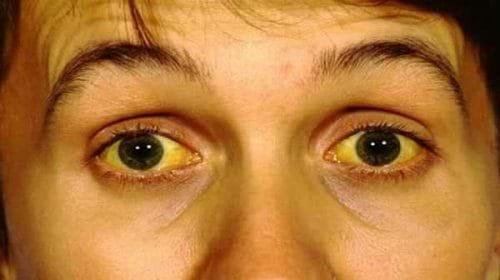 Vàng da, vàng mắc là triệu chứng của viêm gan A