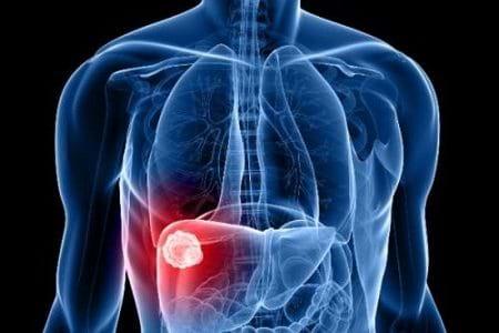 Hi vọng mới cho bệnh nhân suy giảm chức năng gan
