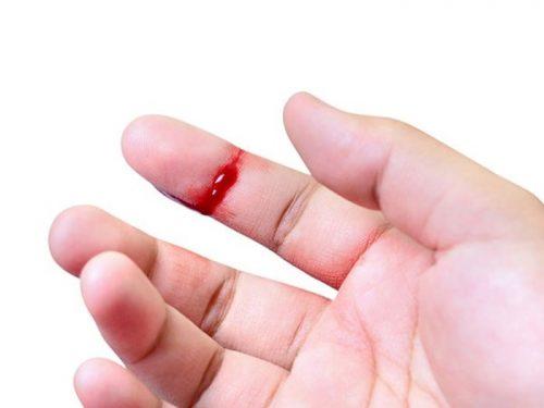 Tiếp xúc với máu làm tăng nguy cơ lây nhiễm viêm gan C