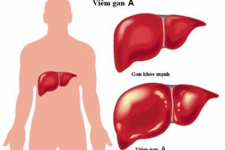5 loại viêm gan virus và triệu chứng thường gặp ở bệnh