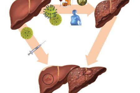 Còn thắc mắc bệnh viêm gan B có nguy hiểm không? đọc ngay bài này