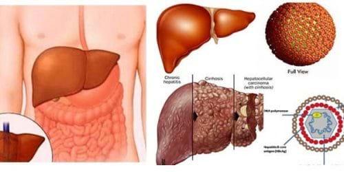 Viêm gan b có lây qua đường ăn uống không? virut viêm gan b có nhiều ở đâu trong cơ thể người bệnh?