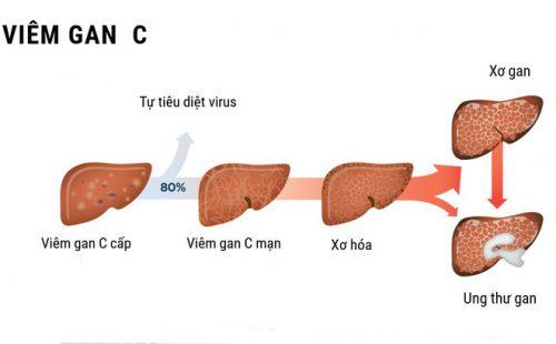 Triệu chứng viêm gan cấp tính và hướng điều trị qua từng giai đoạn của bệnh