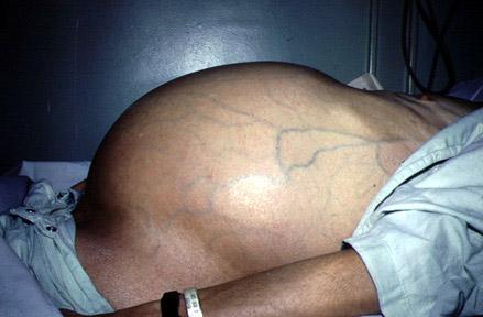 Viêm gan B gây ra phù nề, đau tức vùng gan