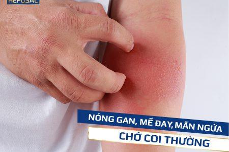 Nóng gan, mề đay, mẩn ngứa – Chớ coi thường