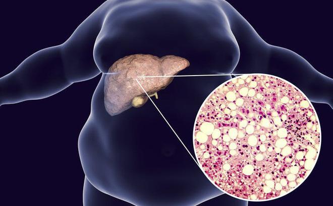 Gan nhiễm mỡ độ 3 có nguy cơ biến chứng sang xơ gan, ung thư gan
