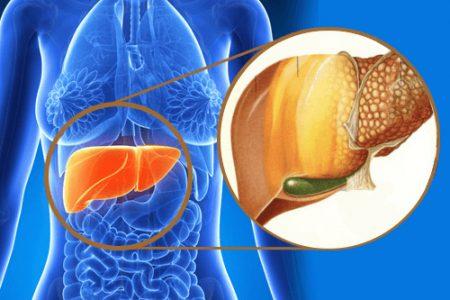 Đánh bay gan nhiễm mỡ, men gan cao trên 500 chỉ sau 1 tháng