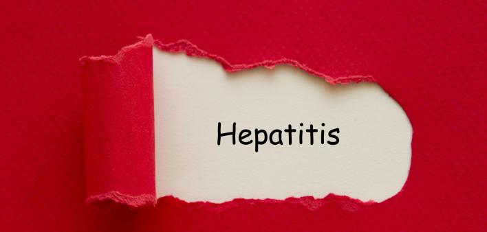 Chữa viêm gan B bằng thuốc nam cần chú ý những gì?