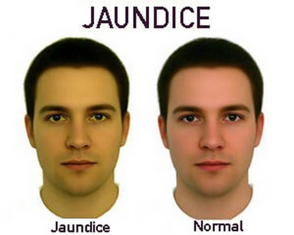 Sự khác biệt giữa vàng da (bên trái) và da bình thường