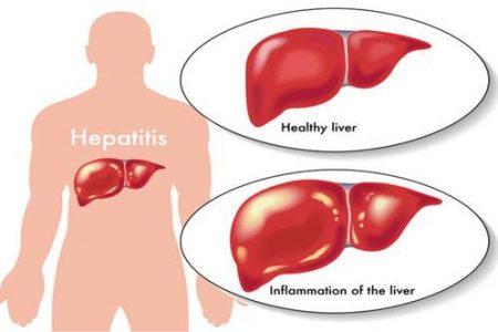 Triệu chứng chung của các bệnh viêm gan cấp tính