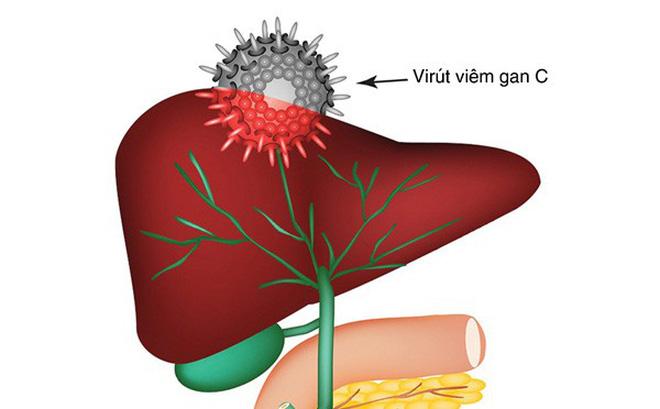 Hiện chưa có vắc-xin phòng ngừa virus viêm gan C