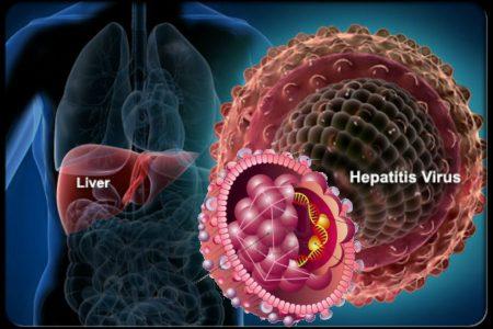 Phân loại viêm gan siêu vi theo giai đoạn và loại virus