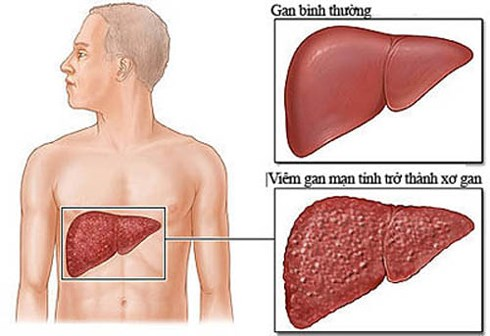 Viêm gan B mãn tính có thể tiến triển thành xơ gan