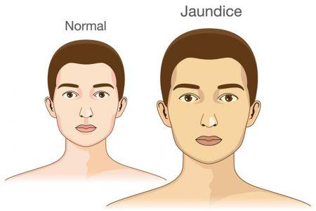 Triệu chứng vàng da và bệnh viêm gan cấp tính