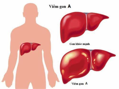 Viêm gan A là gì