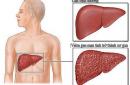 Tuổi thọ của người nhiễm virus viêm gan B sống được bao lâu?